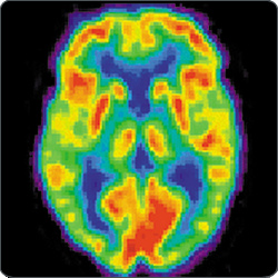 Positron emission tomography is one thing you could do